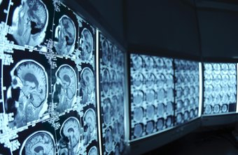 Psychiatry and neurology are growing more alike, as diagnostic imaging provides new insights into the brain's workings.