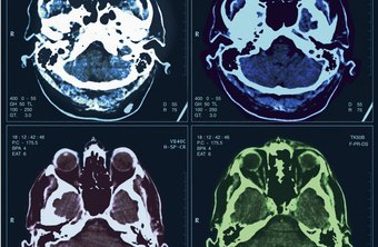 Medical imaging has become a crime-solving and victim-identification tool.