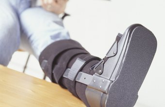 A broken leg is treated as a short-term disability in many states.