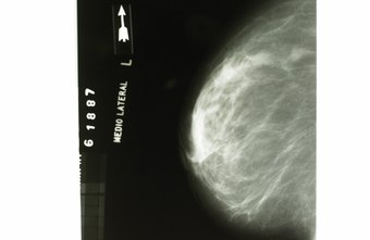 Radiological technicians perform mammogram screenings, and radiologists interpret the results.