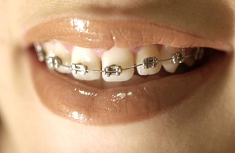Orthodontic assistants make less than oral surgery assistants.