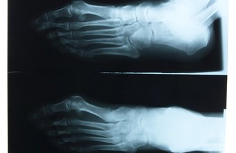 Podiatrists diagnose and correct diseases, injuries and conditions of the foot and ankle.
