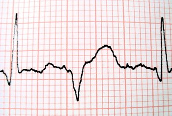 A healthy heartbeat generally ranges from 60 to 100 beats per minute for an adult.