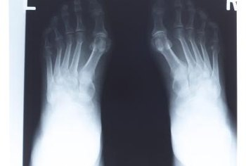 gout toe symptoms gout relief ingredients foods that cause uric acid levels to rise