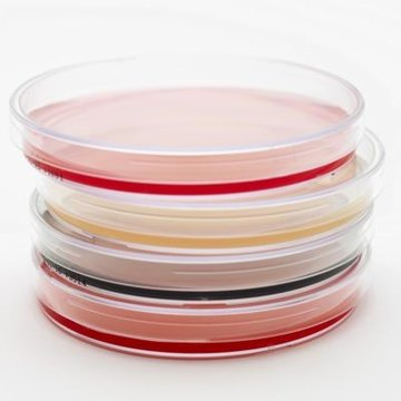 Agar plates can be made with a variety of media and nutrients depending on what organism you want to grow.