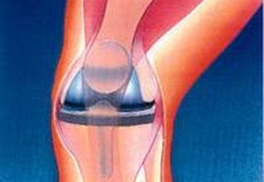 How to Survive a Total Knee Replacement