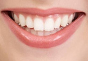 About Laser Teeth Whitening