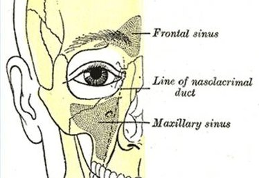 Chronic Sinus Headache Symptoms