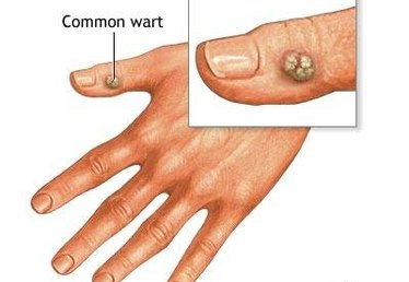 How to Remove Stubborn Warts