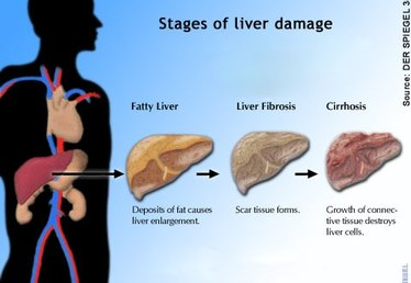 Diet for Cirrhosis of the Liver