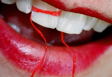 Home Cures for Pyria of the Gums