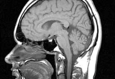 Supratentorial White Matter Disease
