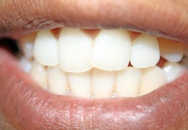 How to Clean Tartar Off Teeth
