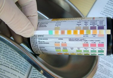 How to Read Urine Reagent Strips