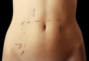 How to Lose Weight After a Tummy Tuck