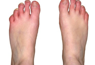 The Average Cost of a Podiatrist Visit