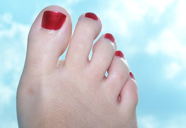 What Are the Pros & Cons for Bunion Foot Surgery?