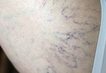 What Do Broken Capillaries on the Arms & Legs Mean?