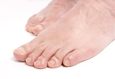 Will Clorox Kill Toenail Fungus?