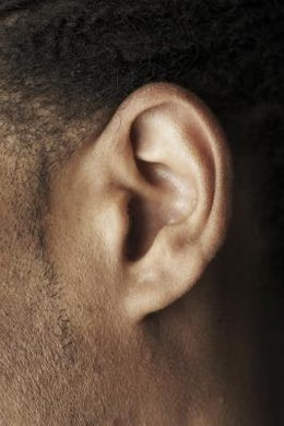 An attached ear lobe is a homozygous phenotype.