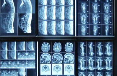 X-rays allow medical professionals to make early detections.