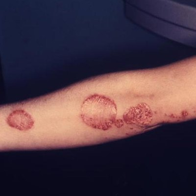 Psoriasis is characterized by scaly skin over the affected areas