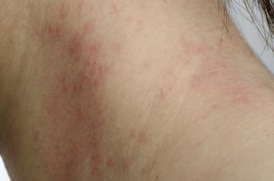 If you develop a skin rash contact your doctor immediately.