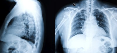 Have a chest x-ray.