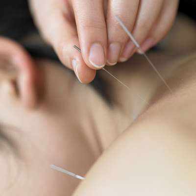 Women receives acupuncture treatment