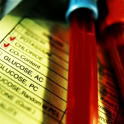 Blood sample and checklist