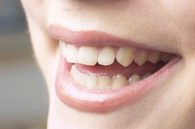 You can lighten nicotine stains on your teeth at home