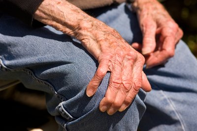 Elderly man with liver spots on his arms and hands