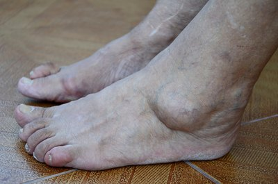 Close up of severely swollen feet