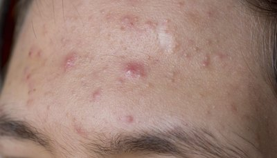 Close up of acne.