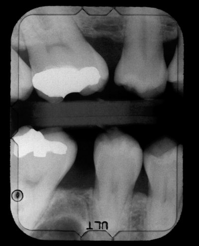 Dental x-ray showing cavities and fillings
