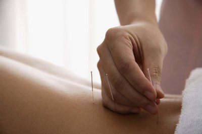 Acupuncturists perform cupping.