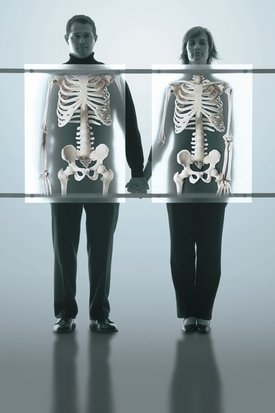 A shortage of calcium is a major contributor to osteoporosis