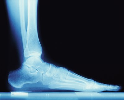 An x-ray of the foot and ankle shows the two major bones of the heel.