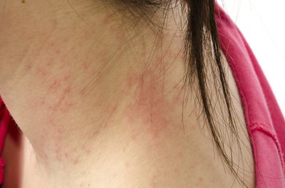 Young woman with a rash on her neck
