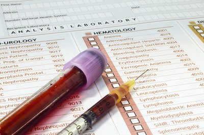 Blood tests can detect the prescence of low calcium.