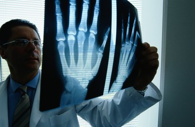 Doctor looking at x-ray of hand.