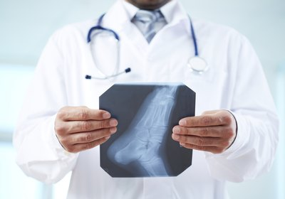 Doctor holding an xray of the foot