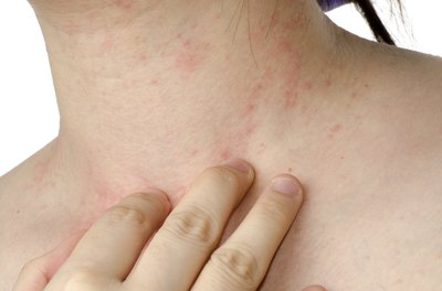 Young individual with an allergy rash