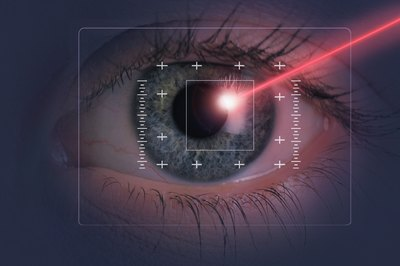 A tax deduction could offset part of the cost of corrective laser eye surgery.