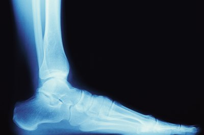Podiatrists often use X-rays to diagnose disorders of the feet.