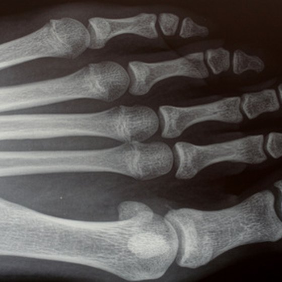Typical X-ray Image