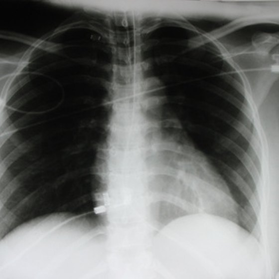 Pericardial effusion is often revealed on a chest x-ray.