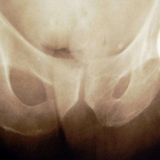 Bone cancer often effects the hip and thigh bone.