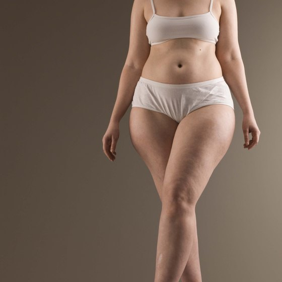 Nutrition and exercise determine how you burn cellulite.