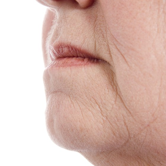 Various methods are available for correcting a flabby chin.